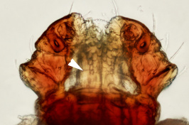 UNH Plays Major Role in Identification of First Asian Longhorned Tick in NH