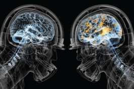 X-ray of two football player brains